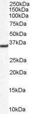 NB300-916 - DDAH1