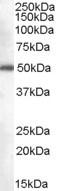 NB100-2818 - DDX6