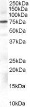 NB100-2831 - Beta-ARK-1 / ADRBK1