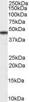 NB100-2919 - Casein kinase I delta
