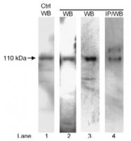 NB100-237 - ATP2A2 / SERCA2