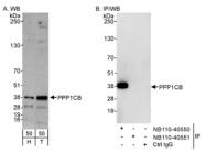 NB110-40550 - PPP1CB