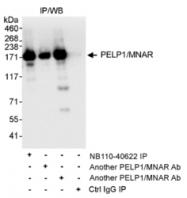 NB110-40622 - PELP1