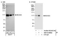 NB110-40682 - BCAS3 / GAOB1