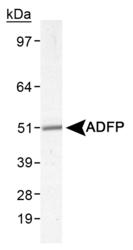 NB110-40877 - Adipophilin / ADFP