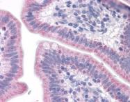NLS6675 - Serotonin receptor 7 (HTR7)