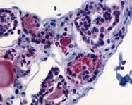 NLS1449 - Thyrotropin receptor / TSHR