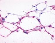 NLS4198 - Beta-3 adrenergic receptor