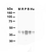 NB110-41404 - Glutamine synthetase