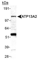 NB110-41486 - ATP13A2 / PARK9