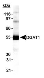 NB110-41487 - DGAT1