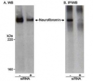NB100-418 - Neurofibromin