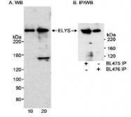 NB600-238 - AHCTF1 / ELYS