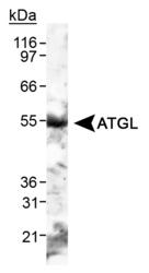 NB110-41536 - PNPLA2 / ATGL