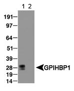 NB110-41537 - GPIHBP1 / GPI-HBP1
