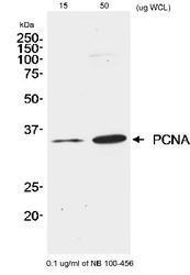 NB100-456 - PCNA