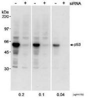 NB200-171 - TP53 / p53