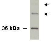 NB100-492 - NKX3-1