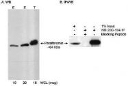 NB200-184 - Parafibromin