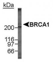 NB100-600 - BRCA1 / RNF53