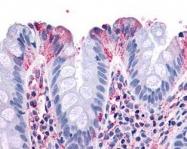 NLS1065 - NPY receptor 1 / NPY1R