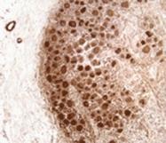 NB300-154 - Neurofibromin