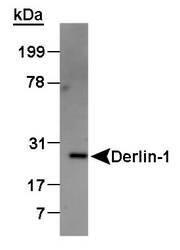 NB100-448 - Derlin-1
