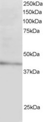 NB100-1276 - LDLRAP1