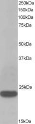 NB600-507 - Transgelin (TAGLN)