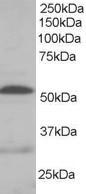 NB100-809 - Integrin-linked protein kinase