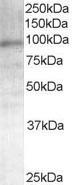 NB100-1446 - Androgen receptor