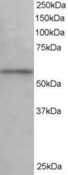 NB100-1373 - KPNA3 / Importin alpha-3