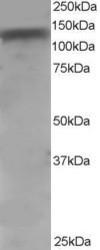 NB100-1012 - CD156b / ADAM17