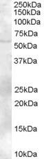 NB100-1317 - ZBTB32 / FAZF