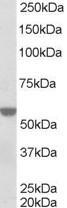 NB100-1466 - RXR-alpha / RXRA