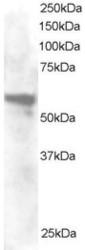 NB300-875 - Annexin A11 / ANXA11