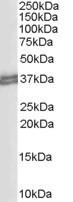 NB300-903 - CD274 / PDL1