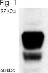 NB600-1144 - Glucocorticoid receptor