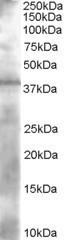NB300-956 - Alcohol dehydrogenase 1A (ADH1)