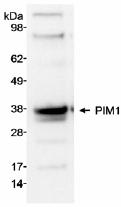 NB100-2313 - PIM1