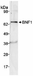 NB100-2319 - CHRDL2 / BNF1