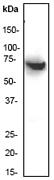 NB600-1176 - EIF2AK2 / PKR