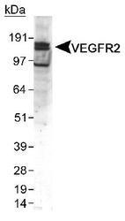 NB100-2382 - CD309 / VEGFR-2 / Flk-1