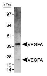 NB100-2381 - VEGF-A