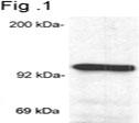 NB300-731 - Glucocorticoid receptor