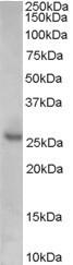 NB100-2816 - CDKN1B / KIP1