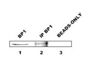 NB100-481 - DLX4 / BP1