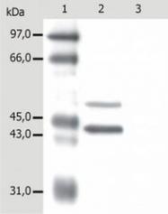 NB500-348 - Cytokeratin 5