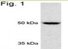 NB120-3318 - PSMD4 / MCB1
