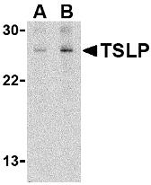 NB110-55233 - TSLP